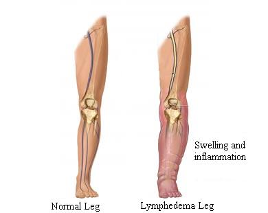 lymphedema care